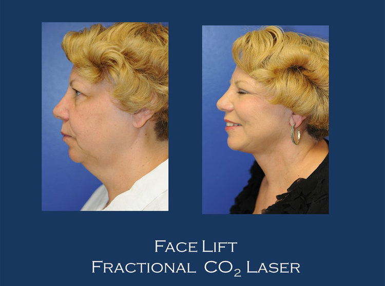 Before and Afters | MedSpa in Vienna, VA
