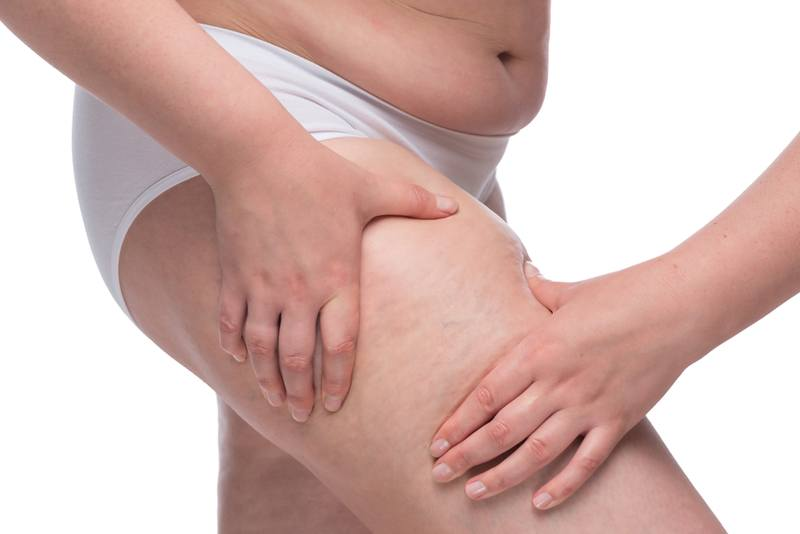 Cellulite Removal with VelaShape